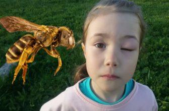Как снять отек от укуса пчелы